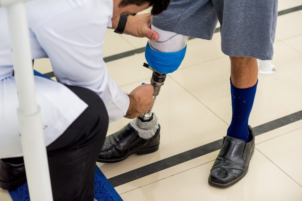 Bionicenter - Prótese para Amputados