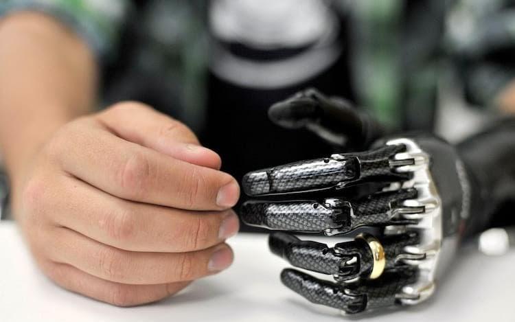 como funcionam próteses biônicas