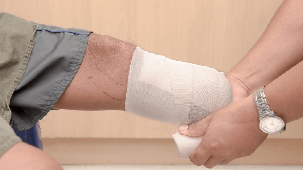 como preparar o coto para protese