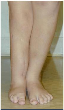 hemimelia fibular