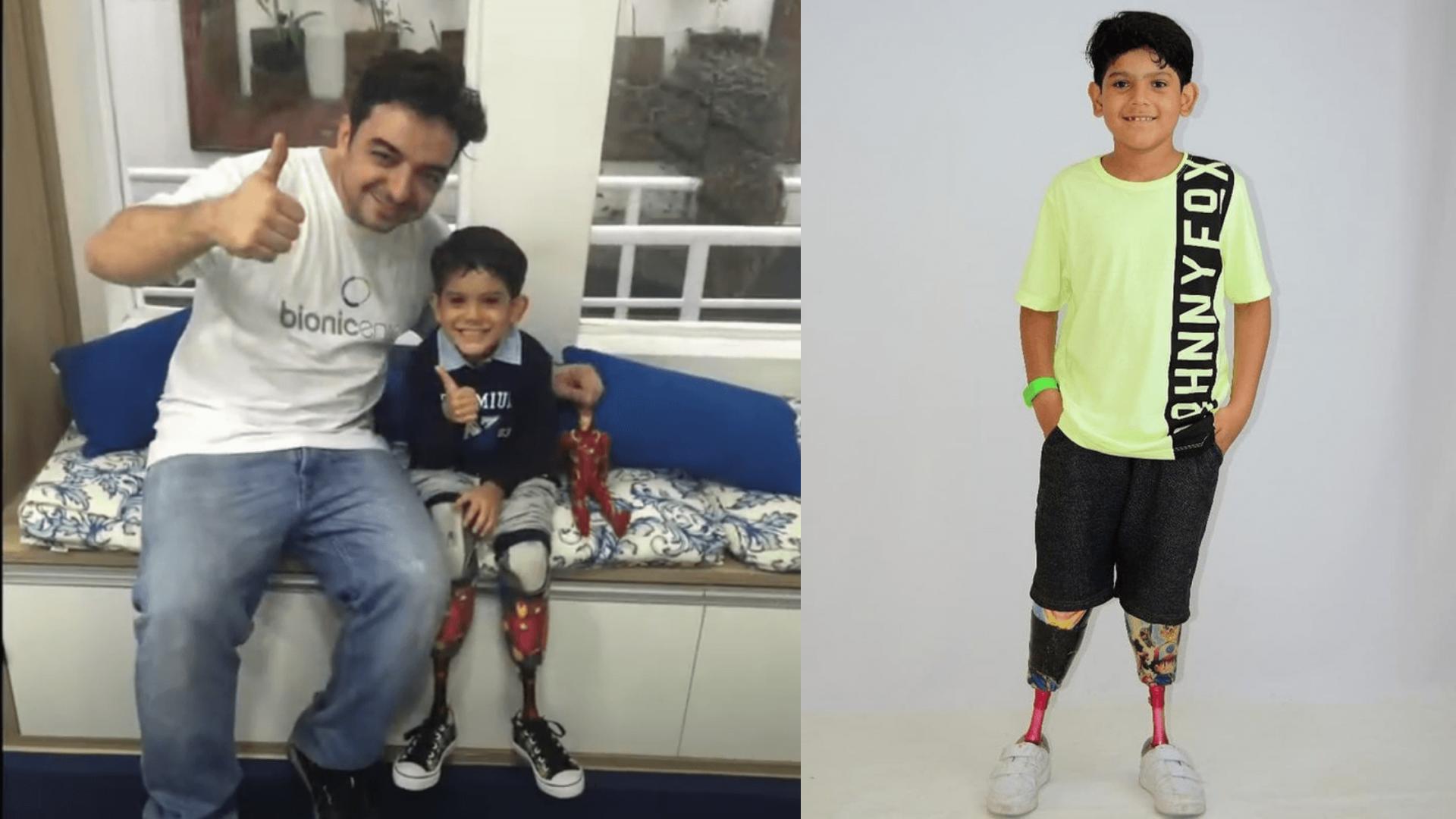 Protetização Infantil: Quando Iniciar o uso da Prótese