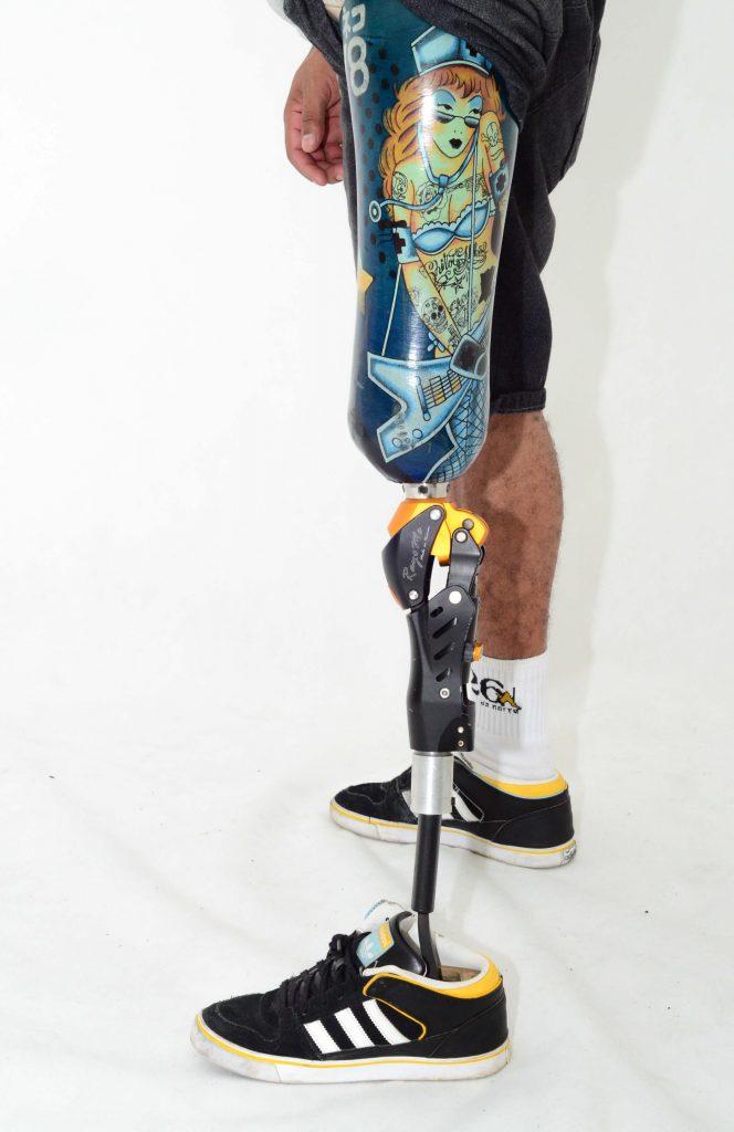 como comprar prótese ortopédica com FGTS
