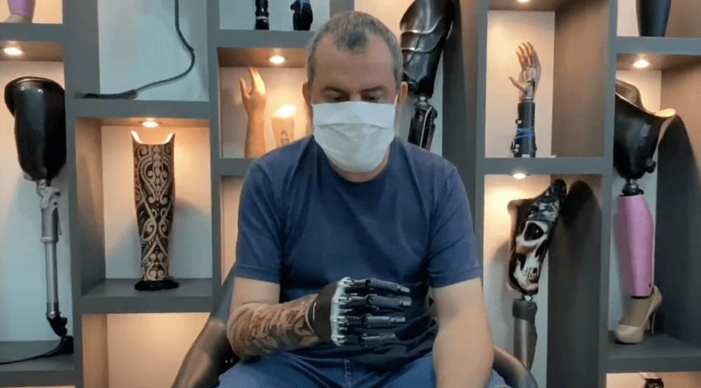 o que é amputação de braço
