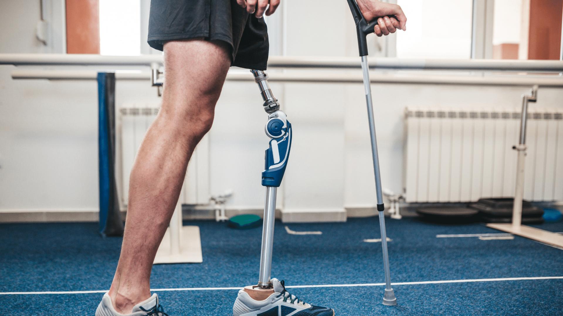 O caminho para reabilitação: fases que todo amputado irá enfrentar