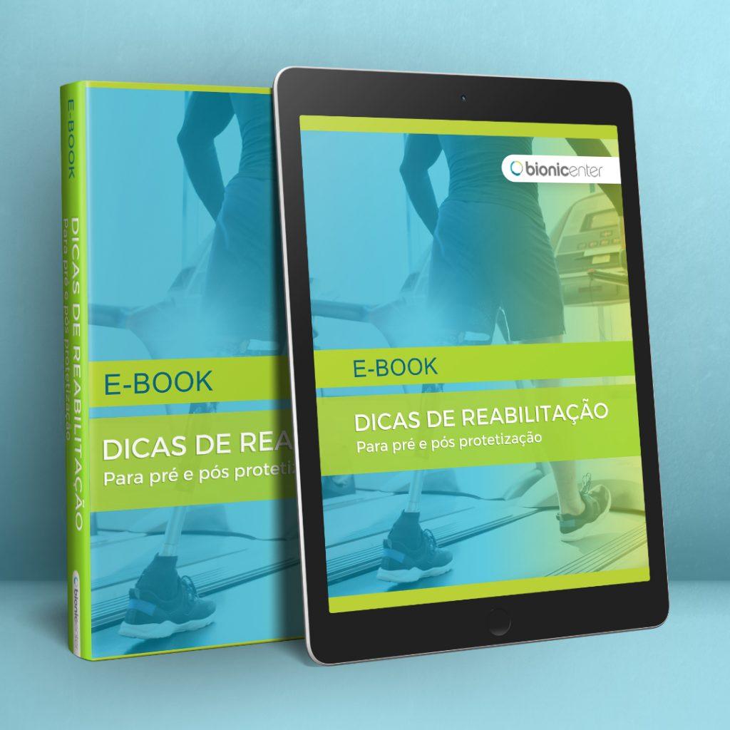 ebook dicas de reabilitação para pré e pós protetização